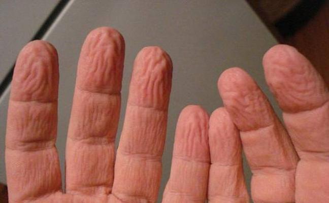 ¿Por qué se arruga la piel si la mantenemos mucho tiempo en el agua?