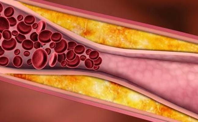 Reducir el colesterol después de los excesos del verano