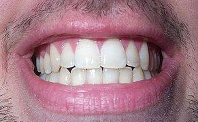 Seis malos hábitos que dañan los dientes