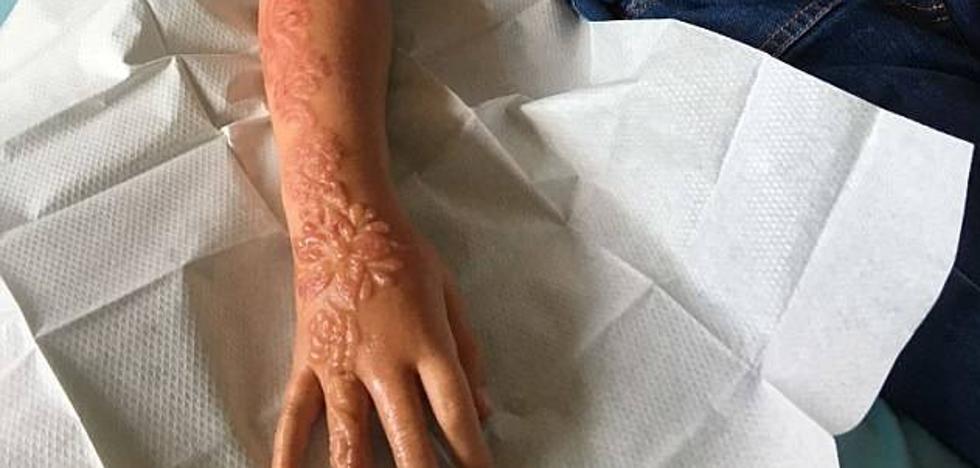 Un tatuaje de henna destroza el brazo a una niña de 7 años