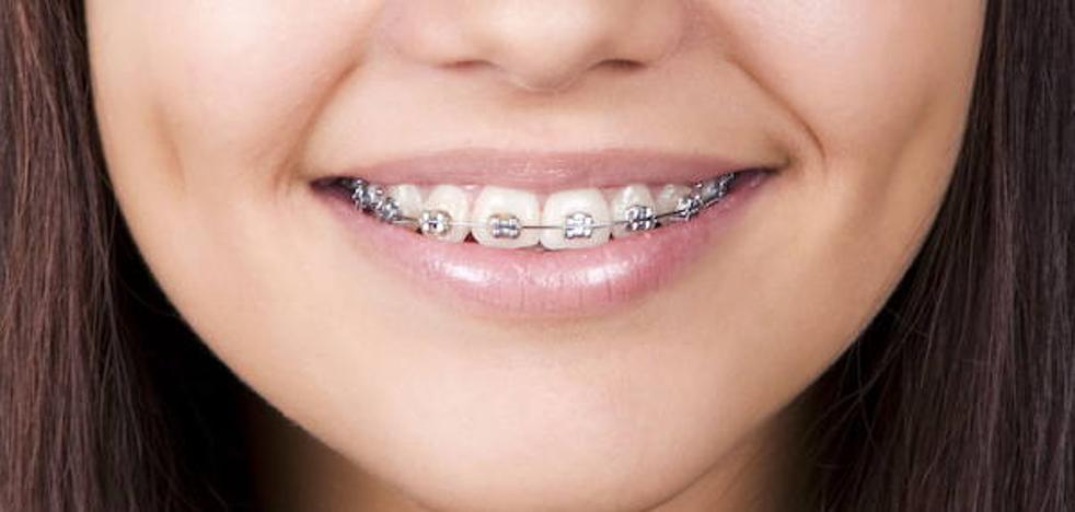 Odontólogos valencianos investigan nuevos materiales para prevenir las manchas blancas en los dientes con brackets