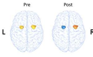 La neuroimagen demuestra que la terapia cognitivo conductual en pacientes con esquizofrenia mejora notablemente la enfermedad