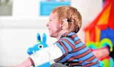 Implantes cocleares, una revolución que no se oye