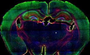 Investigadores españoles consiguen un modelo tumoral para acelerar el tratamiento personalizado del cáncer