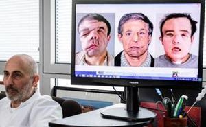 Historia y curiosidades detrás del hombre transplantado de cara dos veces