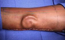 Volverá a tener oreja después de que los médicos la hayan hecho crecer en su brazo