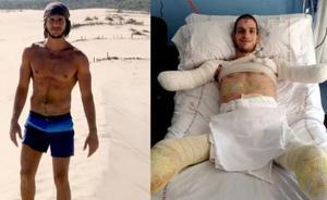 Davide, amputado de brazos y piernas, pide ayuda para una prótesis biónica