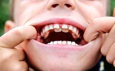 ¿Has oído hablar de los niños con 'dientes de tiburón'?