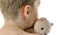 Los pediatras animan a seguir vacunando adolescentes ante los brotes de sarampión