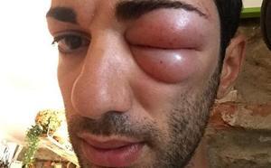 Una picadura en el ojo deja fuera de carrera a un ciclista del Caja rural