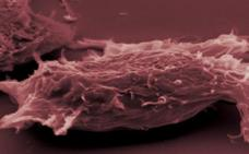 Descubren cómo eliminar las células tumorales durmientes que causan recaídas