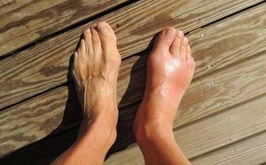 El cambio de color en las uñas o en la piel de los pies puede alertar de una infección
