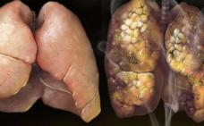 Una mujer muere de cáncer tras recibir un trasplante de pulmones de una fumadora