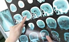 Sanidad retira un lote de un medicamento para el Alzheimer