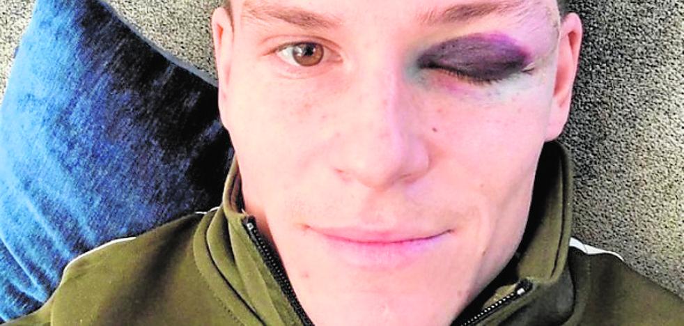 Gameiro se toma con humor el golpe en el ojo que le dio Piqué
