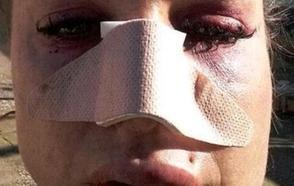 Amparo Mujer de 37 años, víctima de violencia machista en Manises: «Me destrozó la cara, me dio por muerta y no sé si llegaré al juicio»