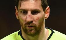 Buenas noticias para Messi: no hay lesión en la nariz ni en el pómulo