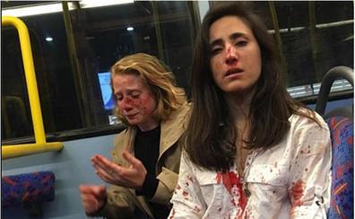 Brutal agresión homófoba a una azafata de Ryanair en un autobús en Londres