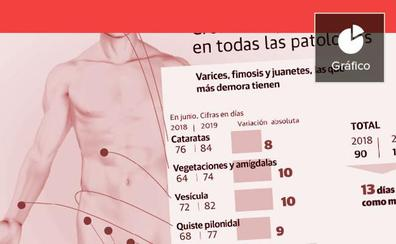 Las demoras se disparan en las operaciones de varices y fimosis hasta los seis meses