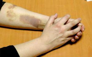 Piden 13 años de cárcel para un hombre cuya pareja se tiró por la ventana para evitar una paliza