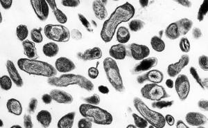 Qué es la Fiebre Q: síntomas, tratamiento y cómo se contagia la Cloxiella burnetii