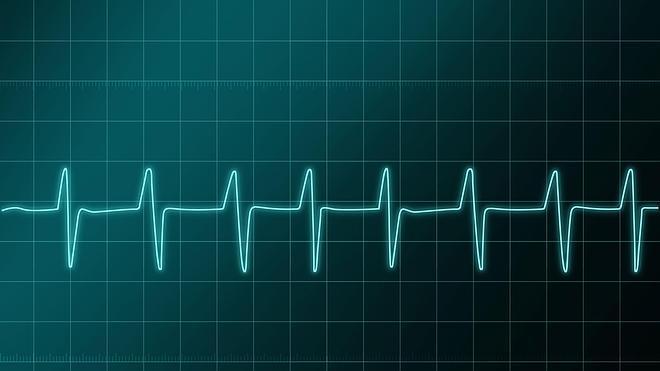 El monitor cardiaco mini e inyectable que detecta las arritmias