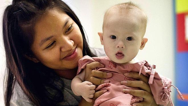 Australia da la ciudadanía al bebé tailandés abandonado con síndrome de Down