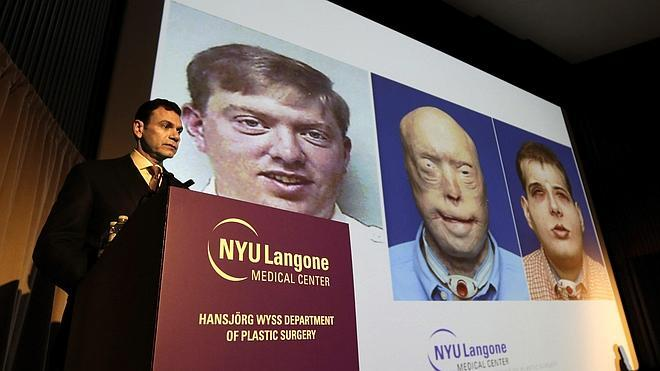 Llevan a cabo en Nueva York el trasplante de rostro más complejo hasta ahora