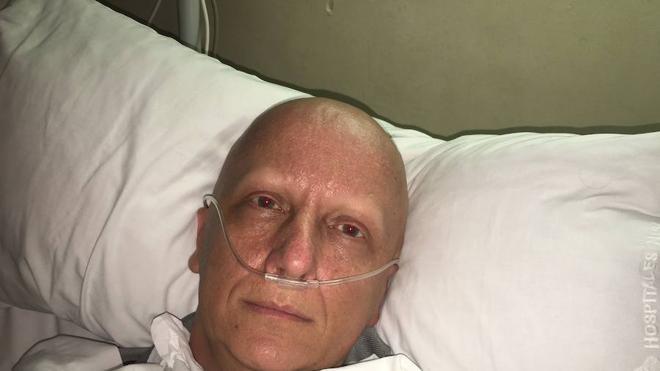 Vivir con 2.000 tumores en el cuerpo, la historia de Paco Sanz