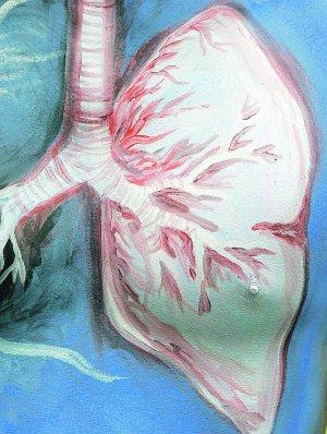 imagenes de un edema pulmonar